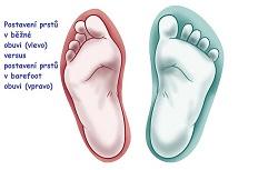 44d56ead861b Článek o zdravých botách v blogu e-shopu Bosý chodec